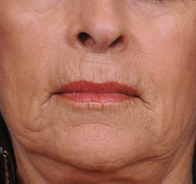 Wrinkle Injectables