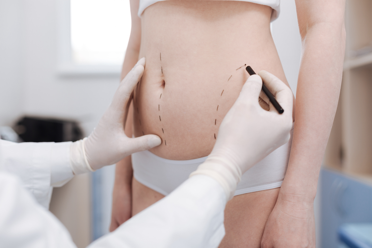 Considering Liposuction For Fat Reduction