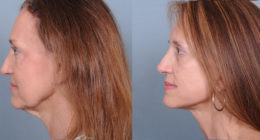 Face Surgery Before & After Gallery