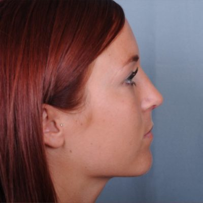 Primary Nose Surgery
