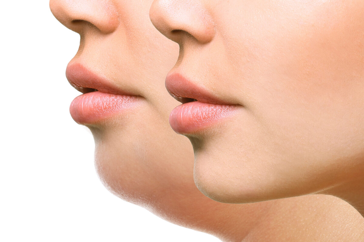 Reducing The Appearance Of a Double Chin With Plastic Surgery