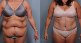 Body Surgery Before & After Gallery