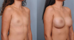 Breast Surgery Before & After Gallery